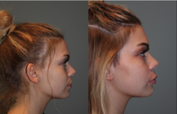 Juvederm Lip Injections - 19 year old female immediately following bruise free Juvederm lip injections.