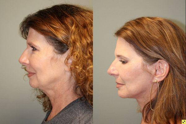 S-Lift Facelift and Lower Blepharoplasty - 57 year old female desiring correction of aging neck and jaw line. She underwent S-Lift (extended SMAS Facelift) procedure 2 months previously.