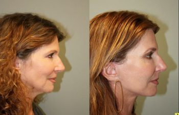 S-Lift Facelift and Lower Blepharoplasty - - 57 year old female desiring correction of aging neck and jaw line. She underwent S-Lift (extended SMAS Facelift) procedure 2 months previously.