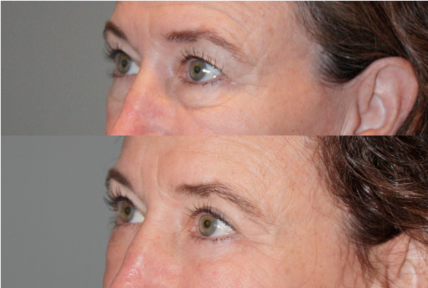 Before & After Eyelid blepharoplasty (eyelid lifts) - 59 year old female 6 months following and upper and lower eyelid blepharoplasty (eyelid lifts).