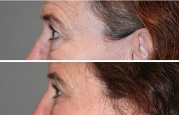 Eyelid blepharoplasty (eyelid lifts) -