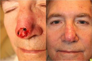 Skin Cancer Reconstruction - 3 months following skin cancer reconstruction using a bilobed flap closure.