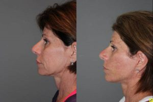 KalosLift Facelift and revision upper Blepharoplasty - 56 Year old Female 3 months postop from a revision Upper Blepharoplasty and KalosLift, or extended mini deep plane facelift.