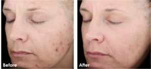 Before and After photo of a womans face after using Skin Medica Vitalize Peel
