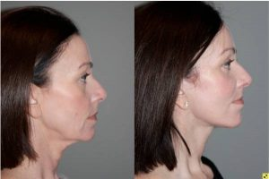 S-Lift Facelift and Lower Blepharoplasty - Correction of aging neck, jaw line and lower eyelids. - 49 year old female desiring correction of her aging neck and jaw line and the bags/puffiness under her eyes. She underwent S-Lift facelift and lower eyelid blepharoplasty with fat transposition 4 months previously.