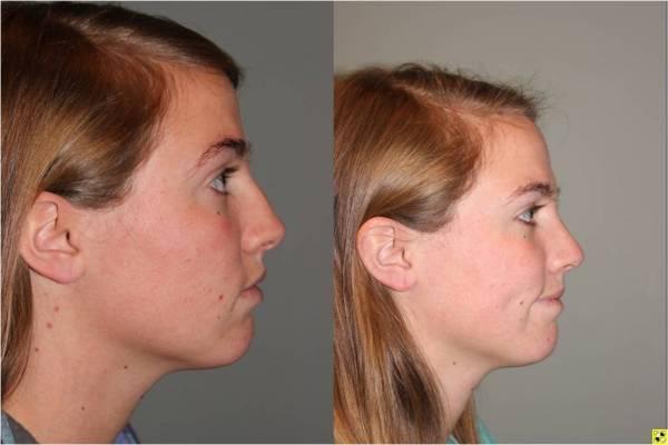 Rhinoplasty - 23 year old female one month post op from rhinoplasty.
