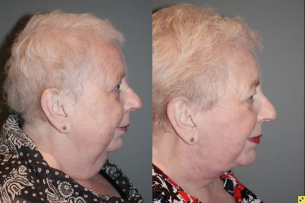 Facelift/Necklift with Chin Implant - 66 year old female 3 months following a facelift/necklift with chin implant.