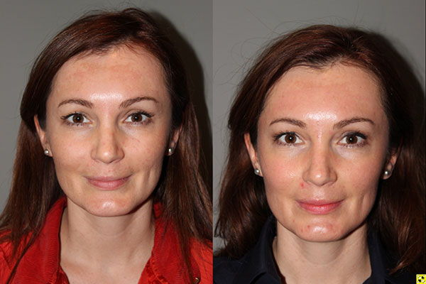 Pearl Laser Skin Resurfacing - 38 year old female 1 week post op from a Pearl Laser Skin Resurfacing procedure to reduce moderate wrinkles and brown pigmentation..