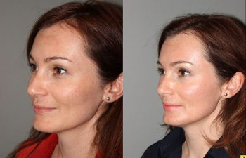 Pearl Laser Skin Resurfacing - 38 year old female 1 week post op from a Pearl Laser Skin Resurfacing procedure to reduce moderate wrinkles and brown pigmentation.