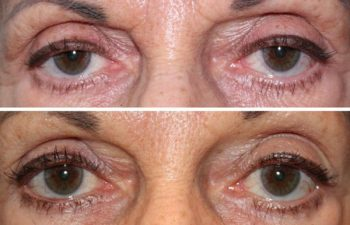 Upper eyelid ptosis repair - 68 year old female 5 months following a bilateral upper eyelid ptosis repair to raise the position of the upper eyelid, creating a more vibrant, youthful appearance to the eyes.