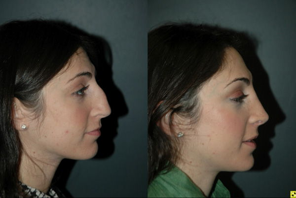 Cosmetic Rhinoplasty - Cosmetic Rhinoplasty performed on 27yo female for bridge/hump reduction and tip refinement.
