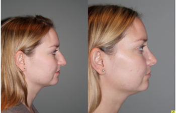 Cosmetic Rhinoplasty - Cosmetic Rhinoplasty performed on 29yo female for bridge/hump reduction and tip refinement.