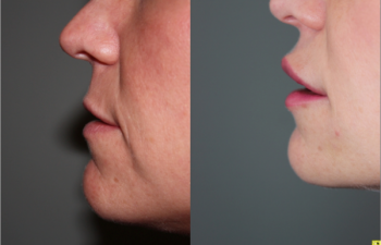 Lip augmentation with Juvederm - Lip augmentation with Juvederm.