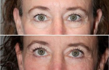 Eyelid blepharoplasty (eyelid lifts) - 59 year old female 6 months following and upper and lower eyelid blepharoplasty (eyelid lifts).