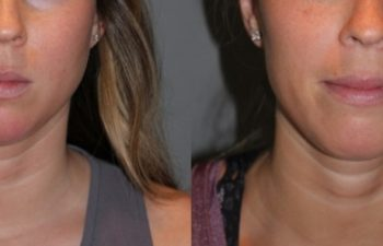 25 year old female 4 months post injection for Kybella double chin treatment