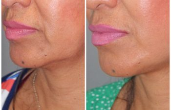 51 year old female 1 year post op following a revision lower eyelid blepharoplasty and a kaloslift mini deep plane facelift.