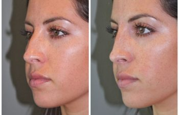 26 year old female following a liquid rhinoplasty nonsurgical nose job to camouflage the bump on her nose.