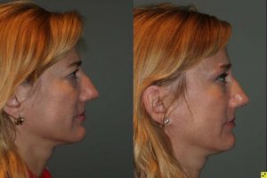 50 year old female 1 month following an endoscopic brow lift and upper eyelid blepharoplasty.
