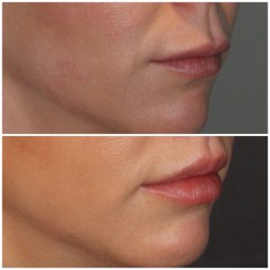 33 year old female 2 months post op from a modified upper lip lift