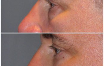 male patient before and after lower eyelid blepharoplasty