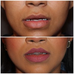 26 year old female 2 months post op from modified upper lip lift.
