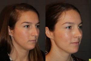 26 year old female 1 month postop from cosmetic rhinoplasty