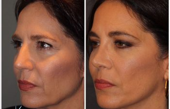 51 year old female 8 months post op from a cosmetic rhinoplasty and an extended mini deep plane facelift Kaloslift.