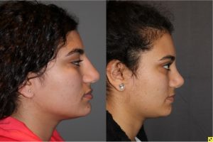 Cosmetic Rhinoplasty - 17 year old female 4.5 months post op from a cosmetic rhinoplasty