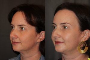 45 year old female three months following Profound RF microneedling to the cheeks and upper neck/chin.