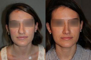 Revision Rhinoplasty - This patient had a revision rhinoplasty where Dr. Stong revised a previous rhinoplasty from another surgeon.