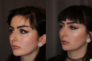 23 year old female 1 month following cosmetic rhinoplasty