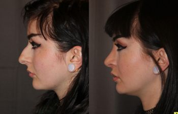 23 year old female 1 month following cosmetic rhinoplasty