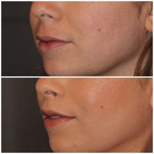 35 year old female 3 months following an upper modified lip lift.