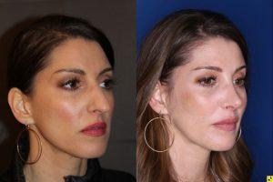 40 Year old Female 3 weeks post op from cosmetic rhinoplasty.