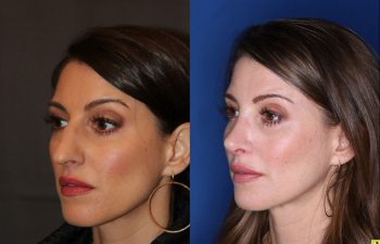 40 Year old Female 3 weeks post op from cosmetic rhinoplasty.