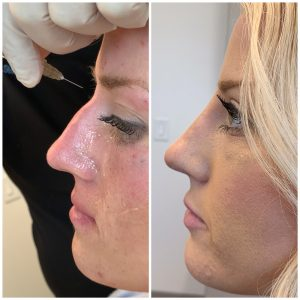 Female Patient before and after Liquid Rhinoplasty