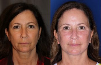 57 year old female 5 months post op from an endoscopic brow lift, upper blepharoplasty, and a Kaloslift deep plane facelift
