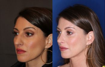 40 year old female 4 months post op from rhinoplasty