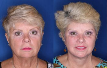 62 year old female 3 months post op from a Kaloslift Deep Plane Facelift and a Modified Lip Lift