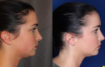 27 year old female four months after two Kybella treatments