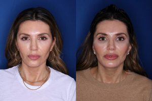 46 year old female 2 months post op from a Kaloslift extended deep plane facelift