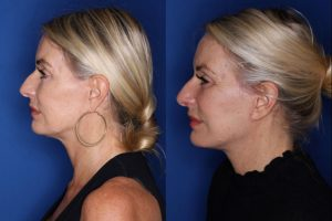 57 year old female 3 months post op from a revision lower blepharoplasty and revision facelift, kaloslift
