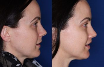 33 year old female 10 months post op from a subnasal lip lift.