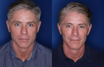 57 year old male 8 months postop from his Kaloslift Extended Deep Plane Facelift