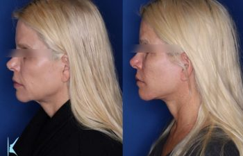 57 year old female 6 months post op from a kaloslift extended deep plane facelift