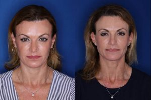 49 year old female 15 months post op from a Kaloslift, extended deep plane facelift and upper eyelid blepharoplasty