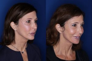 53 year old seven months post op from a Kaloslift, extended deep plane facelift