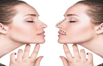 Rhinoplasty Atlanta GA
