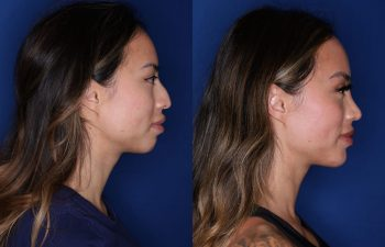 32 year old female 3 months post op from cosmetic rhinoplasty with chin implant