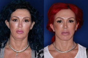 43 year old female 3 months following an extended deep plane mini facelift